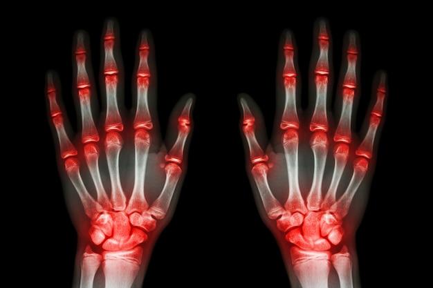 Artritis articular múltiple ambas manos (gota, reumatoide) sobre fondo negro