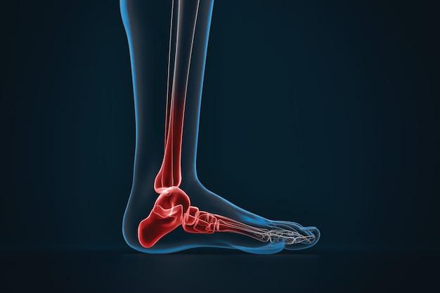 Artritis del tobillo. radiografía del pie. vista lateral