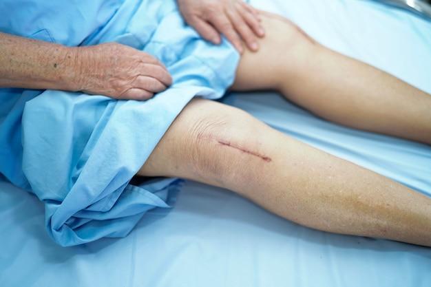 Asia mayor o anciana anciana mujer paciente muestra cicatrices quirúrgicas reemplazo total de la articulación de la rodilla cirugía de la herida con sutura artroplastia