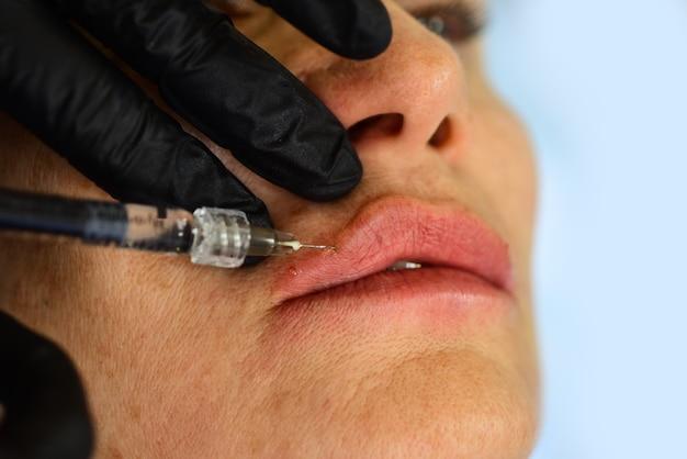 Aumento de procedimiento. jeringa de inyección de ácido hialurónico, aumento. cambios de edad. tratamiento de cosmetología.