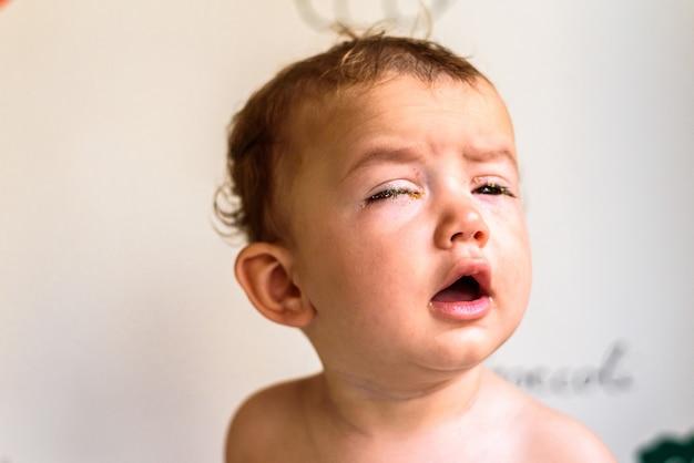 Un bebé con los ojos llenos de reum, producido por conjuntivitis.