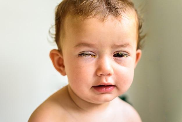 Un bebé con los ojos llenos de reum.