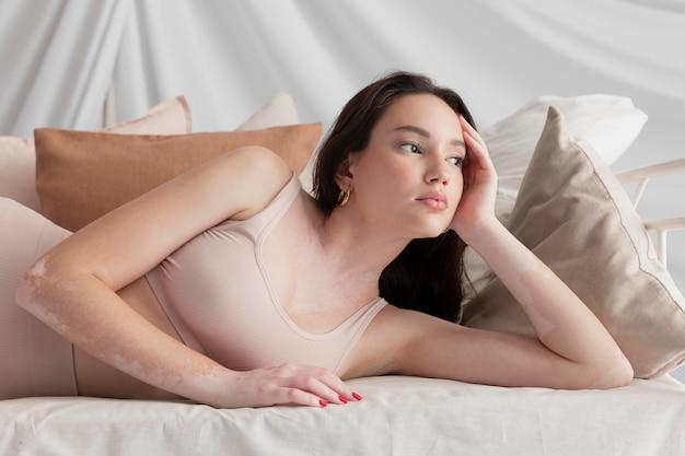 Bella mujer con vitiligo apartar la mirada
