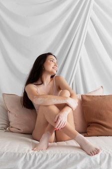 Bella mujer con vitiligo posando