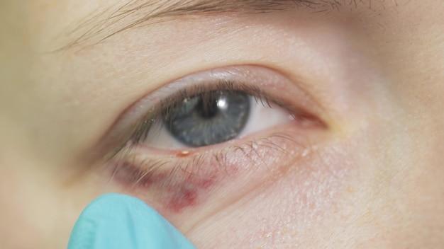 Blefaritis de ojos y pestañas de cerca
