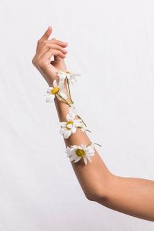 Brazo con flores enyesadas.