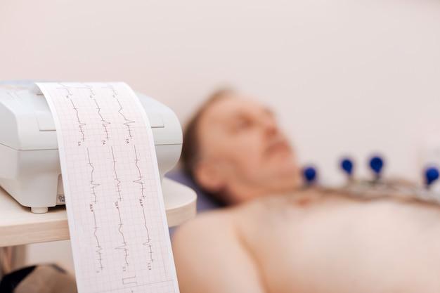 Caballero jubilado obediente concentrado acostado en una cama médica con algunos electrodos adheridos a su pecho mientras un equipo especial lee su frecuencia cardíaca
