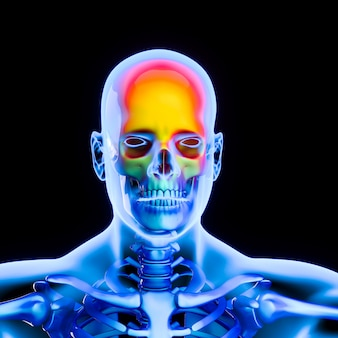 Cabeza humana ilustrativa con dolor de cabeza.