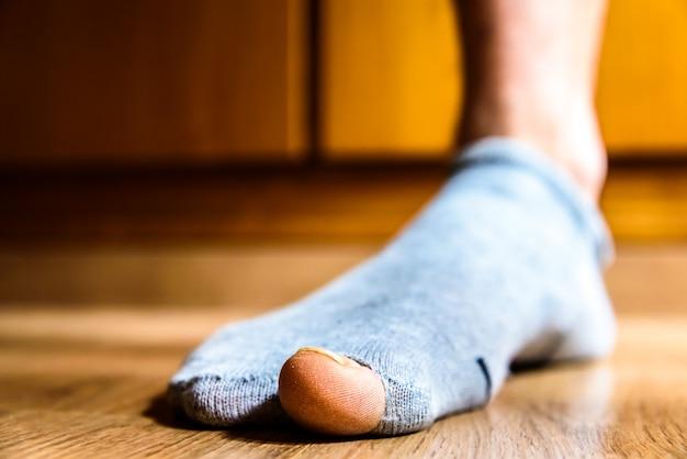 Calcetín roto con un agujero en el dedo gordo de un hombre, concepto de pobreza durante la crisis.