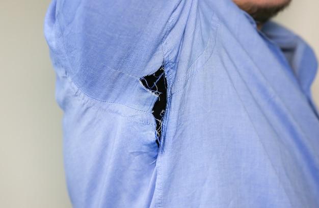 Camisa rasgada. hombre con ropa que necesita reparación y costura.