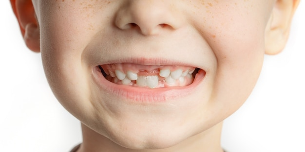 Cara de niño con dientes frontales perdidos