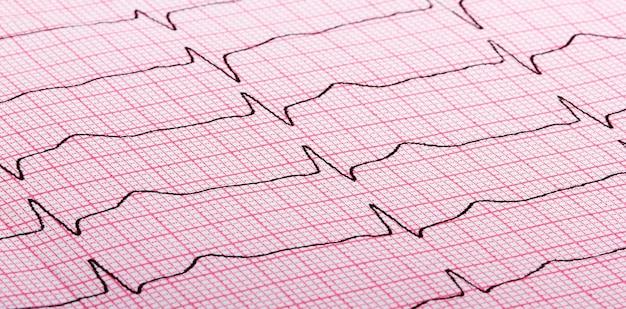 Cardiograma de latidos del corazón sobre papel rojo