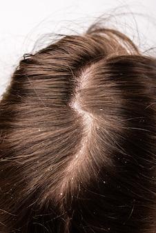 Caspa seborrea problema del cuero cabelludo y tratamiento capilar de descamación por alergias o liquen.