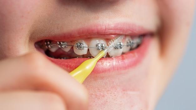 Cerca de una adolescente limpieza de brackets de ortodoncia. chica con frenillos en los dientes. tratamiento de ortodoncia.
