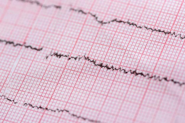 Cerca del cardiograma utilizado como fondo, tema médico