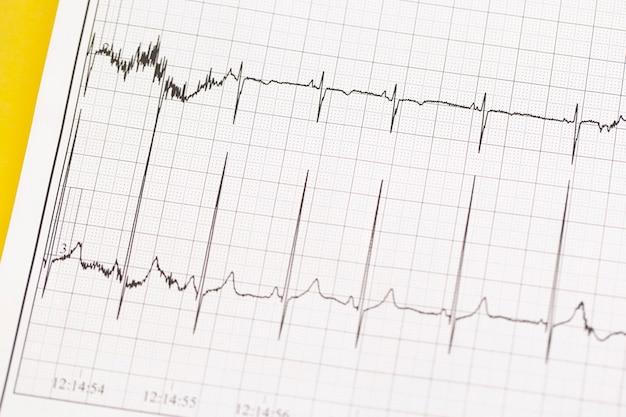 Cerca de ecg, electrocardiograma. el trabajo de un corazón sano sobre el papel.