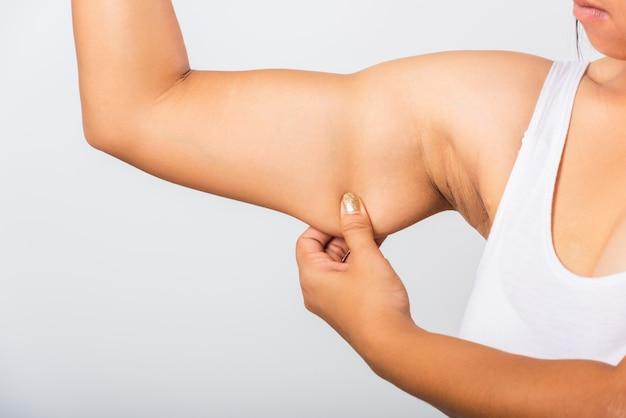 Cerca de mujer asiática tirando el exceso de grasa en su brazo