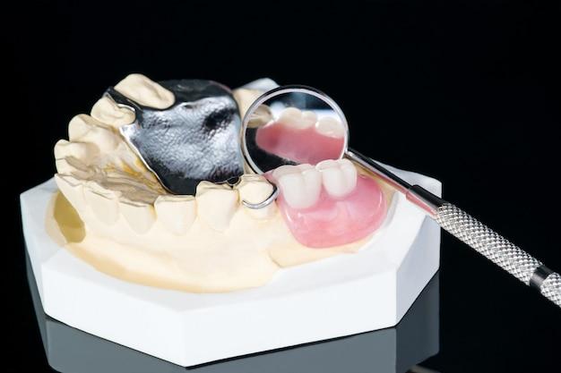 De cerca, prótesis parcial removible (rpd) en negro.