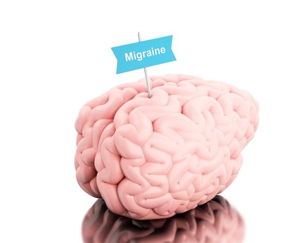 Cerebro 3d con un letrero y una palabra migraña.