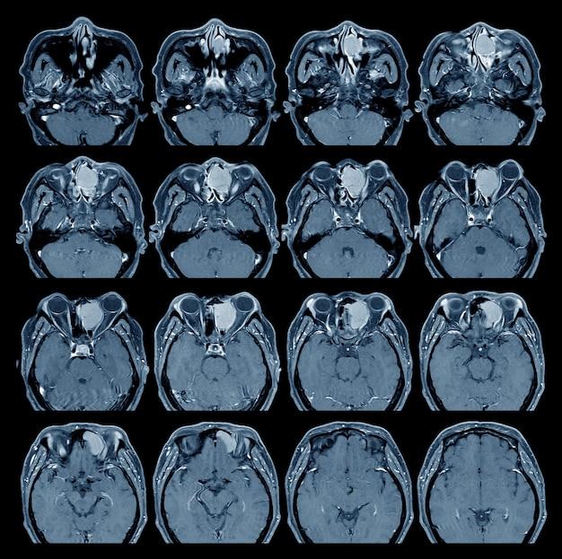 El cerebro y la órbita de resonancia magnética muestran ocupando el etmoides anterior izquierdo y los senos frontales izquierdos