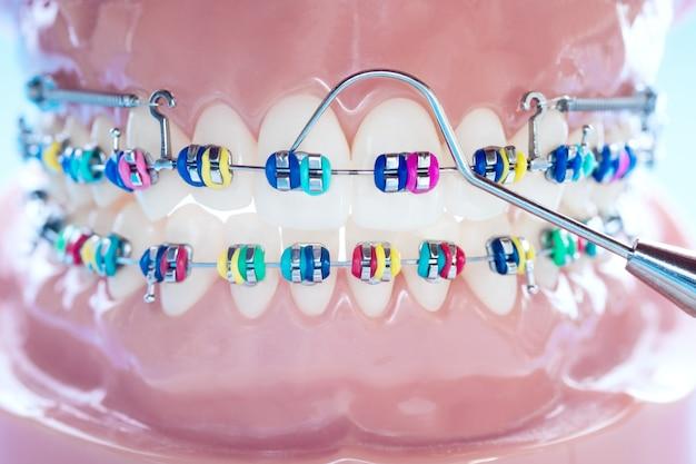Cerrar herramientas de dentista y modelo de ortodoncia: modelo de dientes de demostración de variedades de brackets o brackets de ortodoncia