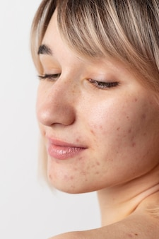 Cerrar mujer con acné posando