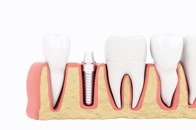 Cerrar la sección de implantes de proceso de aislamiento. render 3d