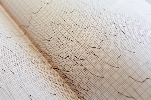 Cerrar vista de un papel de electrocardiograma.