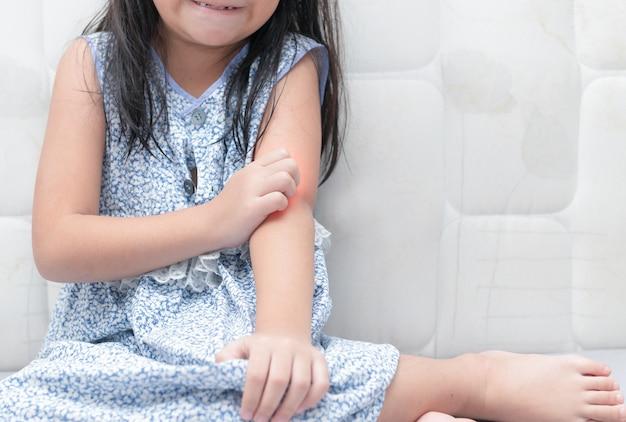 Chica arañar el picor con la mano, el concepto con la asistencia sanitaria y la medicina.