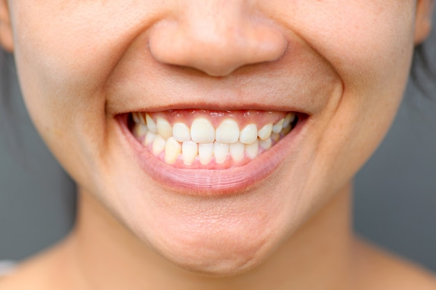 Chica asiática sonrisa cerca