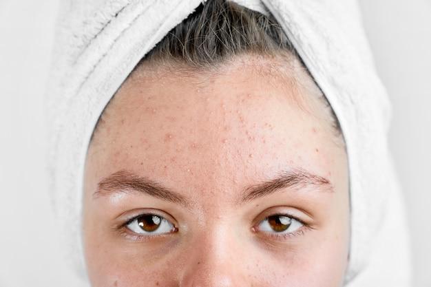 Chica después del spa en una toalla blanca con acné problema problema de período de pubertad de la piel