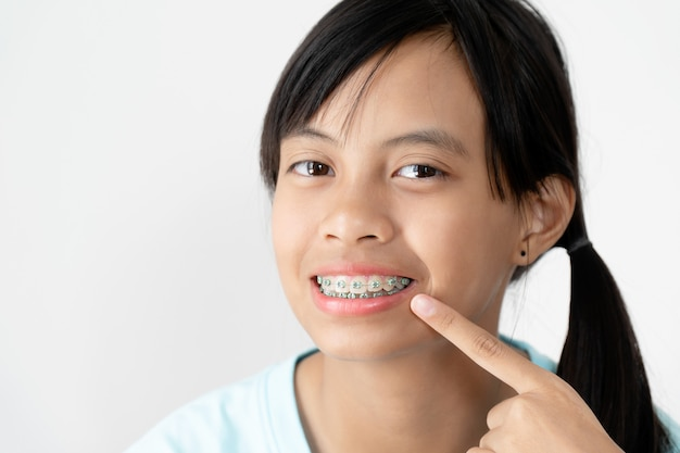 Chica con frenillos dientes sonriente y feliz.