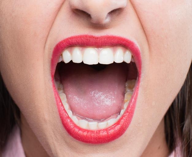 Chicas guapas jóvenes gritando