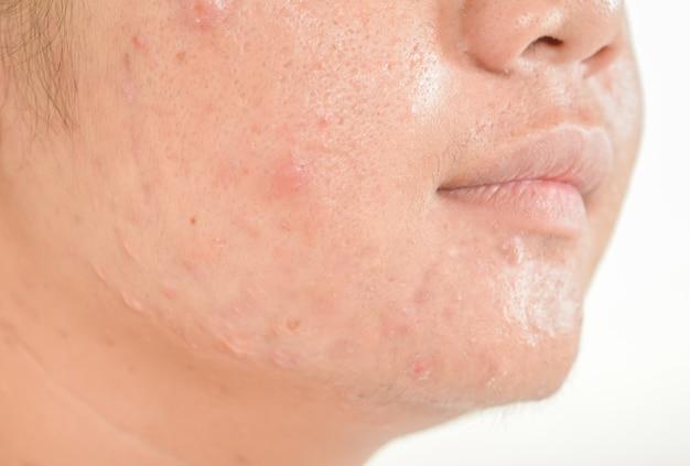 Cicatriz de acné en la cara