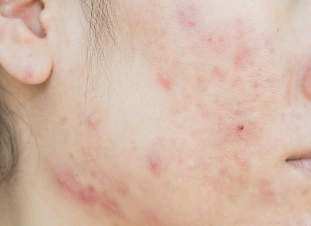 Cicatriz de acné en el problema de la cara y la piel