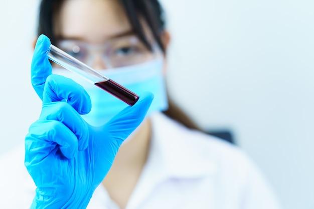 Científico técnico que analiza la celebración de una muestra de sangre en un tubo de ensayo en el laboratorio para probarla en covid, covid-19, análisis del virus del coronavirus