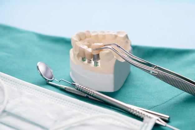 Cierre el implante del puente y la corona del soporte del diente del modelo del implante.
