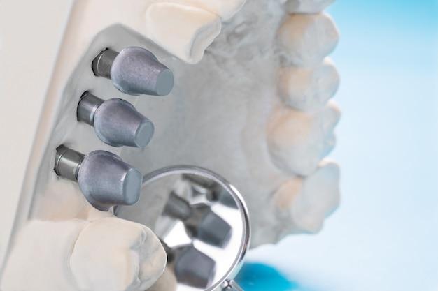 Cierre el modelo implan, soporte de diente, puente de fijación, implan y corona