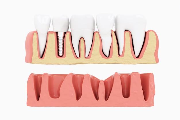 Cierre la sección de implantes de proceso de aislamiento con goma. render 3d