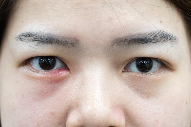 Ciérrese para arriba de la infección asiática hermosa del orzuelo del ojo de la mujer (hordeolum).