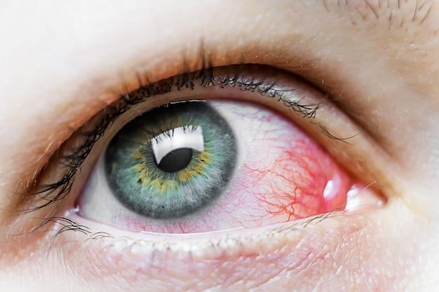 Ciérrese para arriba de un ojo rojo severo inyectado en sangre. blefaritis viral, conjuntivitis, adenovirus. ojo irritado o infectado.