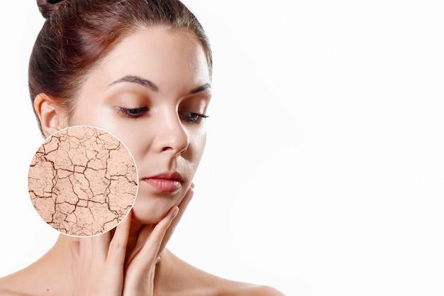 El círculo de zoom muestra la piel facial seca antes de humedecer. chica joven, retrato de belleza. de cerca.