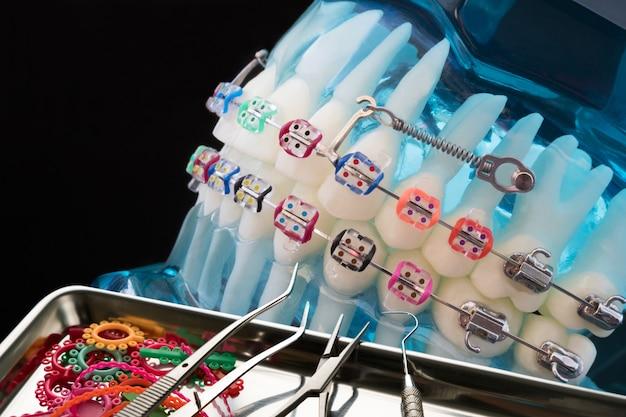 Close up herramientas de dentista y modelo ortodóntico.