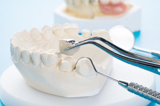 Close up implan modelo soporte dental fijación puente implante y corona.