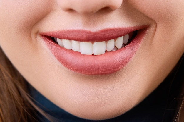 Closeup sonrisa hermosa de la mujer joven. salud dental. blanqueamiento dental. concepto de restauración