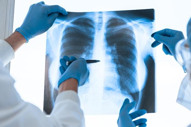 Colegas médicos discutiendo una radiografía de los pulmones