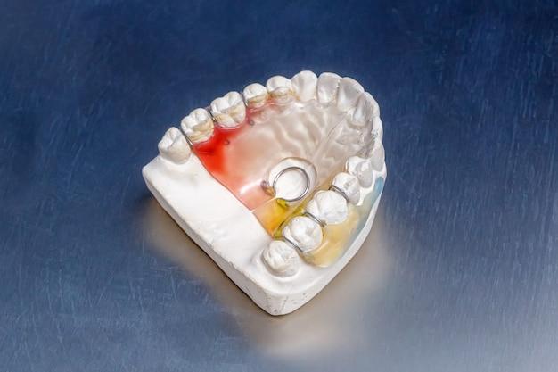 Coloridos aparatos dentales o retenedores en el molde de los dientes, modelo de encías humanas de arcilla
