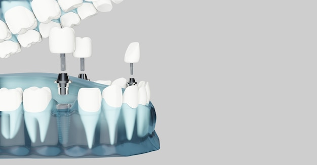 Componente de implantes dentales y copia espacio. color azul transparente. ilustraciones 3d