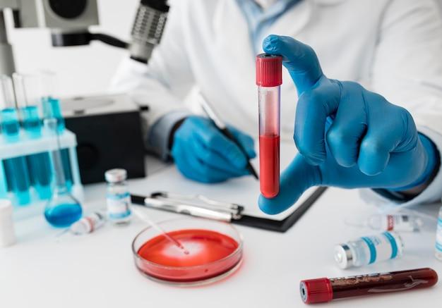 Composición de la vacuna contra el coronavirus en el laboratorio