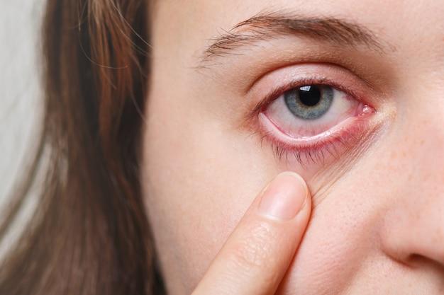 Concepto de medicina, cuidado de la salud y vista. la hembra irreconocible muestra su ojo rojo inflado con capilar de sangre